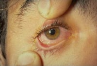 Picture of corneal ulcer. Image courtesy of Brian S. Skow, MD.