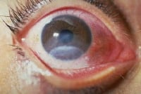 Picture of corneal burn. Image courtesy of Brian S. Skow, MD.