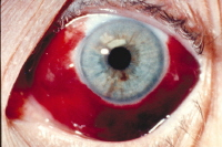 Picture of subconjunctival hemorrhage Image courtesy of Lawrence B. Stack, MD.