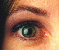 Picture of the pupil.