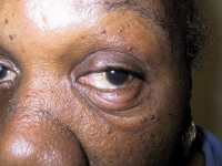 This woman has an acute stye on her lower eyelid and a chalazion on her upper eyelid.