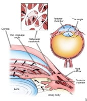 Elevated eye pressure is caused by a build-up of fluid inside the eye because the drainage channels (trabecular meshwork) cannot drain it properly. Elevated eye pressure can cause optic nerve damage and vision loss.