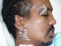 This 26-year-old man received many cuts and bruises after falling from a 7-story window. This picture was taken 1 week after his fall. His eyebrow and neck wounds have been closed with adhesive strips.
