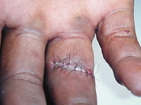 Close-up of sutures of the ring finger.