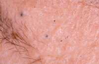 Comedones (blackheads and whiteheads).