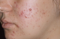 Acne nodules.