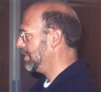 This man demonstrates typical male-pattern baldness. Notice that the side and back regions are least affected.