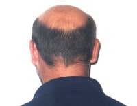 This is a typical view of male-pattern baldness from the back.
