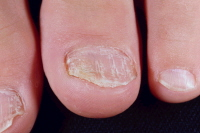 Media file 3: Nail psoriasis with nail loosening. Image courtesy of Hon Pak, MD.