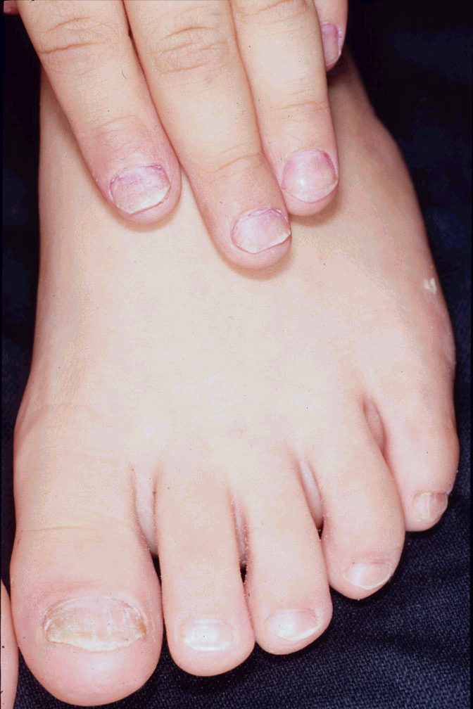 Media file 4: Nail psoriasis of the fingernails and toenails
