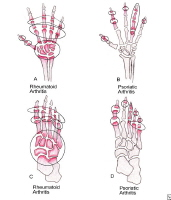 Comparison between psoriatic arthritis and rheumatoid arthritis in both hands and feet.