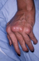Swelling and deformity of the hand joints in a patient with psoriatic arthritis.