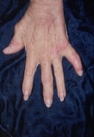 Psoriatic arthritis involving the hand joints.