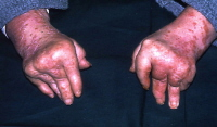Arthritis mutilans, a typically psoriatic pattern of arthritis.