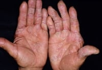 Psoriasis on the palms. Image courtesy of Hon Pak, MD.