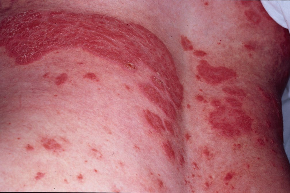 I have mild Psoriasis, where the skin my neck, chest, and back get discolored spots (cow spots) 1