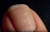 Picture of nail psoriasis with pitting.