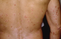 Picture of guttate psoriasis. Red drop-like lesions are found on the skin.