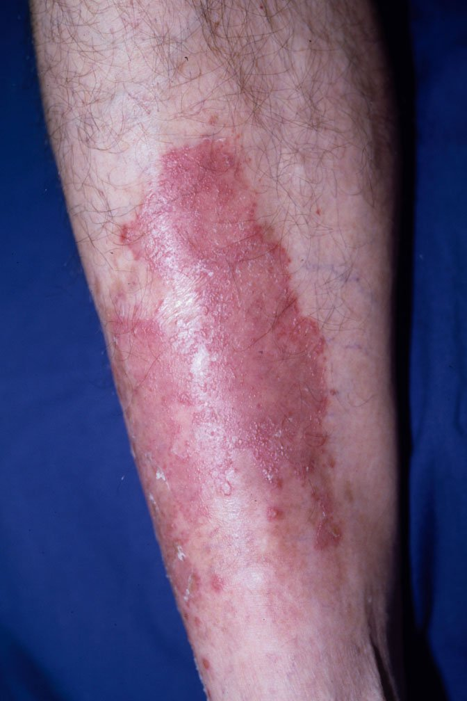 Types of Psoriasis Causes, Symptoms, Treatment - Systemic