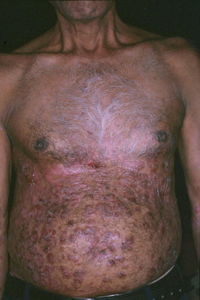 what are the symptoms of plaque psoriasis