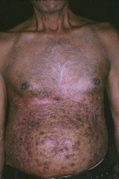 Picture of plaque psoriasis on an abdomen