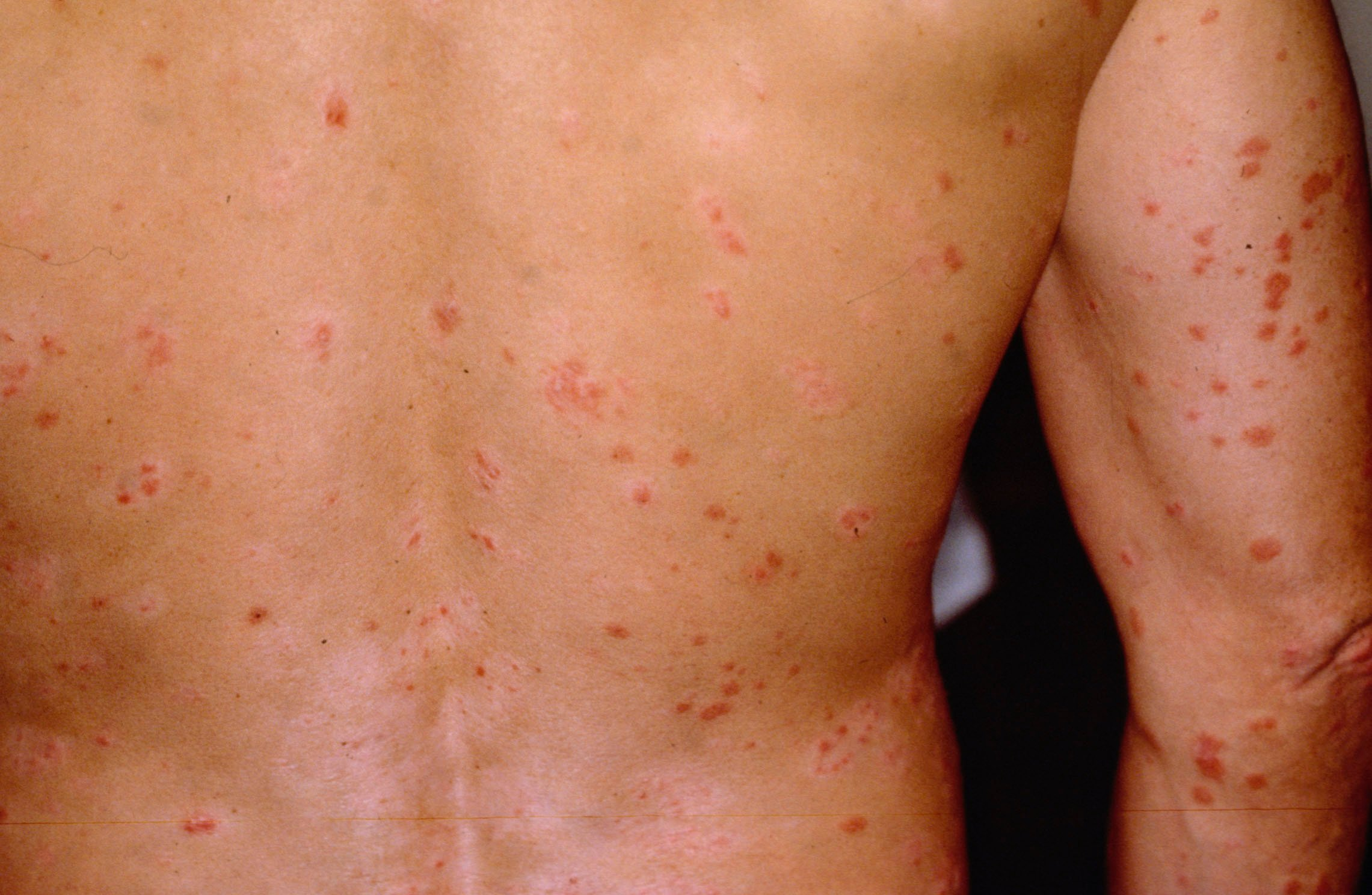 What Causes Red Spots On Skin