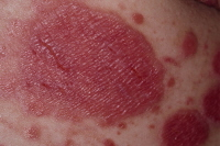 Picture of plaque psoriasis with fissures, which are splits in the skin. Fissures usually occur where the skin bends (joints). The skin may bleed and is more susceptible to infection.
