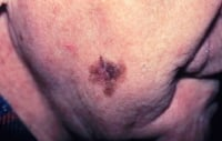 Skin cancer. Melanoma, right lower cheek. Photo courtesy of Susan M. Swetter, MD, Director of Pigmented Lesion and Cutaneous Melanoma Clinic, Assistant Professor, Department of Dermatology, Stanford University Medical Center, Veterans Affairs Palo Alto Health Care System.