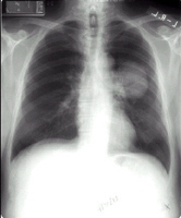 Chest X-ray film that shows a shadow in the left lung, which was later diagnosed as lung cancer
