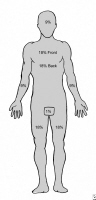 Adult body surface-area burn estimate diagram.