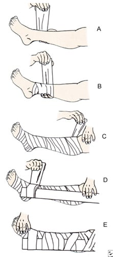 The pressure immobilization technique. A, Begin to wrap the limb with an elastic bandage. B, Continue wrapping up the limb. C, Wrapped limb. D, Begin to apply a splint. E, Wrapped and splinted limb.