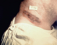 Skin lesions of anthrax on neck. Picture courtesy of the Public Health Image Library, CDC, Atlanta, Georgia.