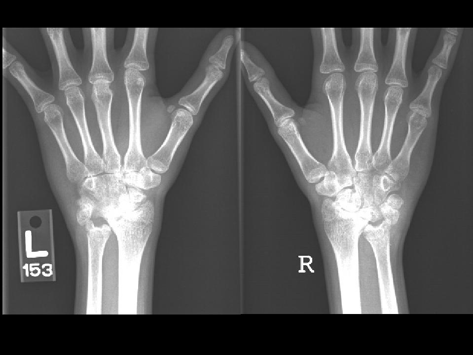 Child Rheumatoid Arthritis