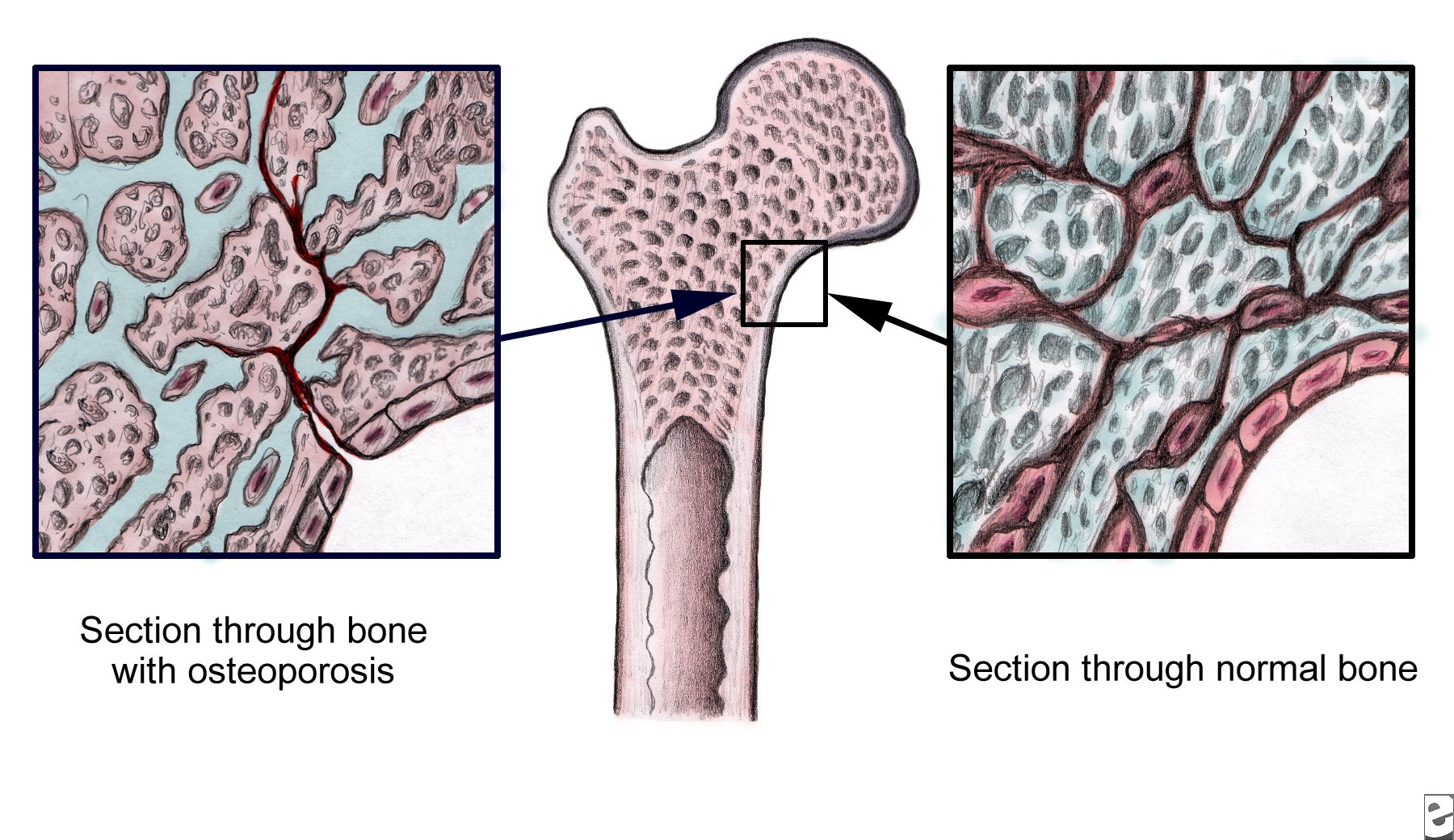 a look at the causes symptoms and treatment of osteoporosis Learn about its causes, symptoms, and treatments  to understand  osteoporosis, it can help to see what normal bone looks like versus bone.
