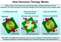 Hormone replacement therapy causes calcium to be retained in bone cells. Calcium increases bone strength.