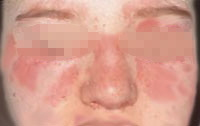 Malar rash of lupus