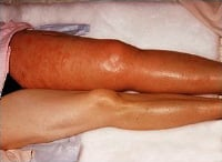 Deep venous thrombosis (blood clot). Notice the contrast between the involved left leg and the normal right leg. Redness, swelling, and warmth combined with discomfort in the involved leg are cardinal manifestations of a deep venous thrombosis.