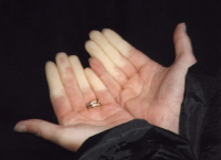 Illustration of Raynaud's phenomenon: The author's hands on a sunny 50 F day.