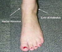 Click to larger picture of the ankle anatomy
