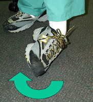 Ankle sprain. Picture of inversion injury of ankle. Note it is turned inward.