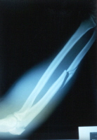 Forearm fracture with multiple fragments