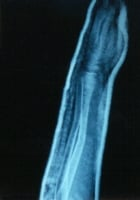Forearm fracture (ulna) after splint application