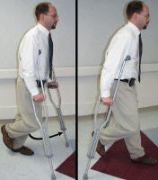 Broken foot. Proper use of crutches for non-weight bearing. The knee on the injured leg is bent to keep the injured foot off the ground. Crutch tips are placed in front of you as you walk, and the good leg swings forward between the crutches as shown.