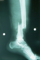 Broken leg. Fracture of the tibia and the fibula (a tib-fib fracture), seen from the side. Courtesy of Lisa Chan, MD; Department of Emergency Medicine, University of Arizona.