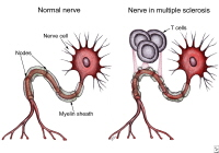 Immune system T cells attack and destroy the myelin sheath, leaving the nerve cell fibers unprotected.