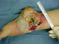 Media file 3: Severe advanced pyoderma gangrenosum (a rare skin complication of inflammatory bowel disease) is present on the left ankle.