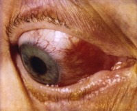 Media file 6: Episcleritis, inflammation of a portion of the eye in conjunction with inflammatory bowel disease. Courtesy of Dr. David Sevel.
