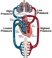 Picture of congestive heart failure.