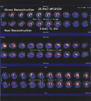 Results of a nuclear stress test from a person with angina. A significant defect in the amount of blood pumped during stress appears to a major blockage (stenosis) in the right coronary artery.