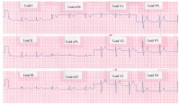 Picture of rhythm strip showing a normal 12-lead ECG